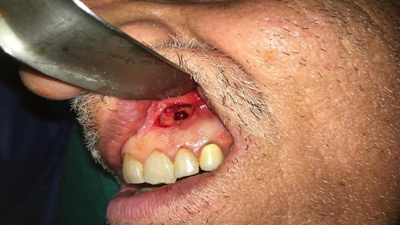 بهترین دندانپزشک اصفهان | جراحی اپیکو