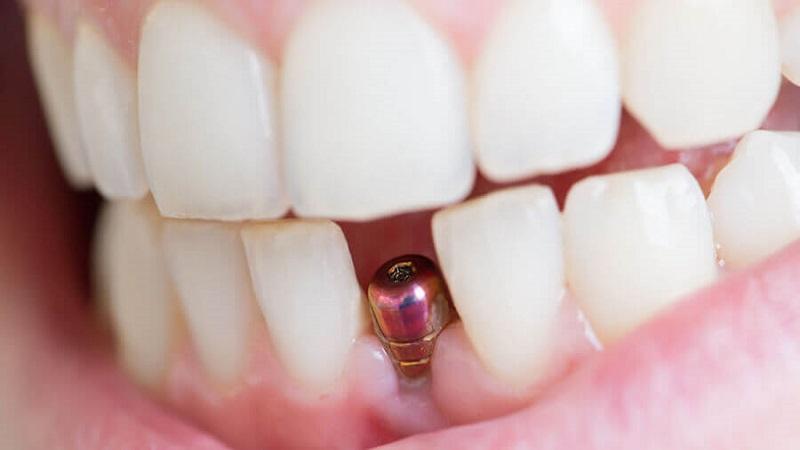 بهترین دندانپزشک اصفهان   عوارض ایمپلنت در طول زمان