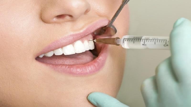 بهترین دندانپزشک اصفهان   اپیکواِکتومی