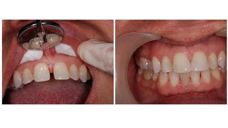 بهترین دندانپزشک اصفهان | بستن فاصله دندانى با لامینت