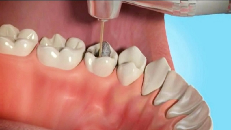 بهترین دندانپزشک اصفهان   عصب کشی با اپیکواکتومی