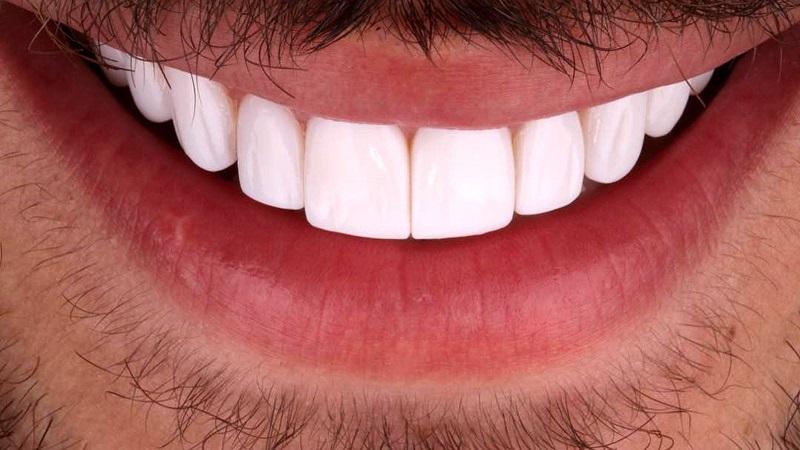 بهترین دندانپزشک اصفهان | لمینت دندان