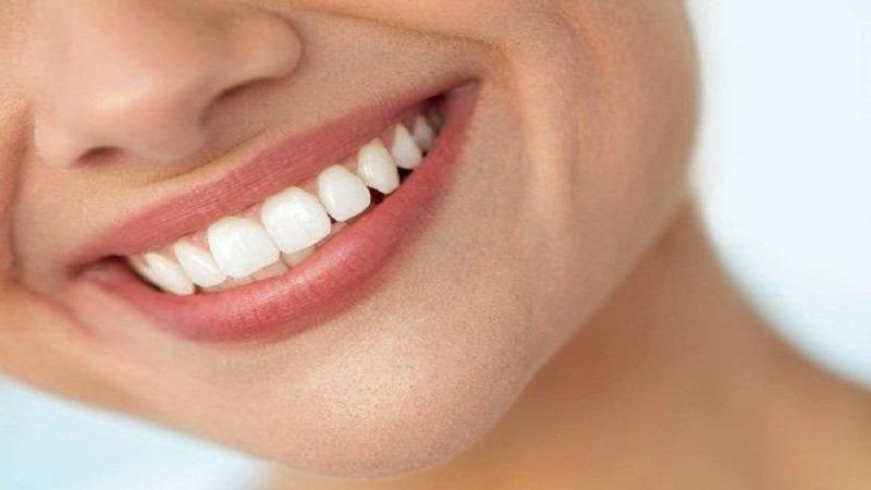 بهترین دندانپزشک اصفهان | مزایا و معایب لمینت دندان