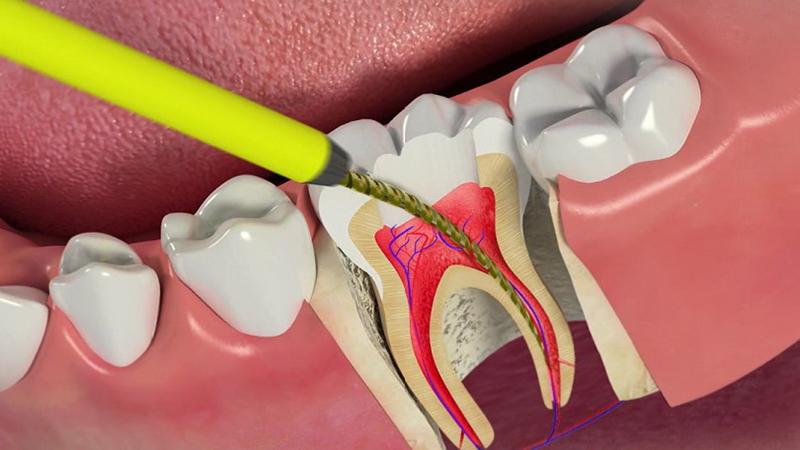 بهترین دندانپزشک اصفهان   کاهش درد بعد از عصب کشی