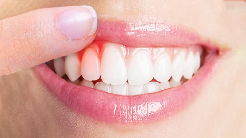 بهترین دندانپزشک اصفهان   بیماریهای لثه در کودکان
