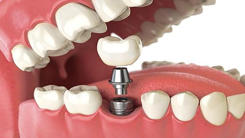 بهترین دندانپزشک اصفهان | ایمپلنت و بریج دندان برای چه کسانی مناسب است؟