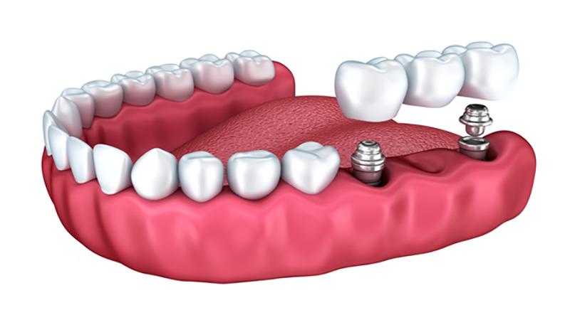 بهترین دندانپزشک اصفهان | ایمپلنت وبریج دندان