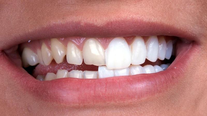 بهترین دندانپزشک اصفهان | روکش دندان