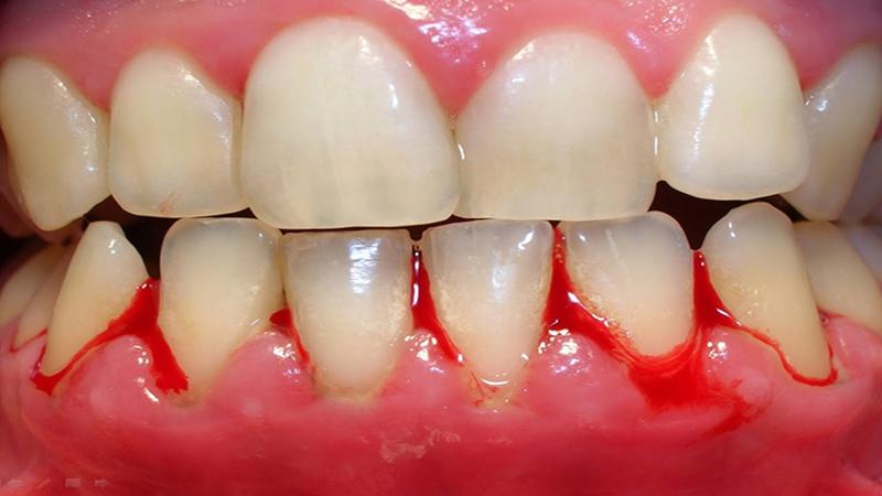 بهترین دندانپزشک اصفهان | پریودنتال چیست