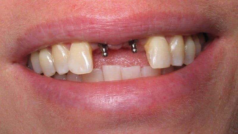 بهترین دندانپزشک اصفهان   مینی ایمپلنت
