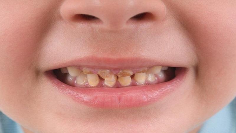 بهترین دندانپزشک اصفهان   پوسیدگی دندان شیری