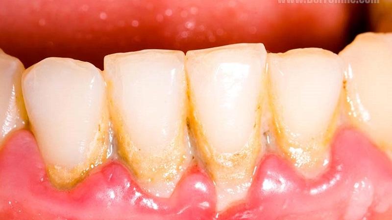 بهترین دندانپزشک اصفهان   آماس لثه
