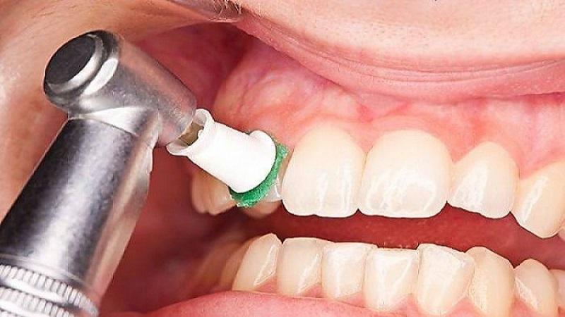 بهترین دندانپزشک اصفهان | جرم گیری دندان