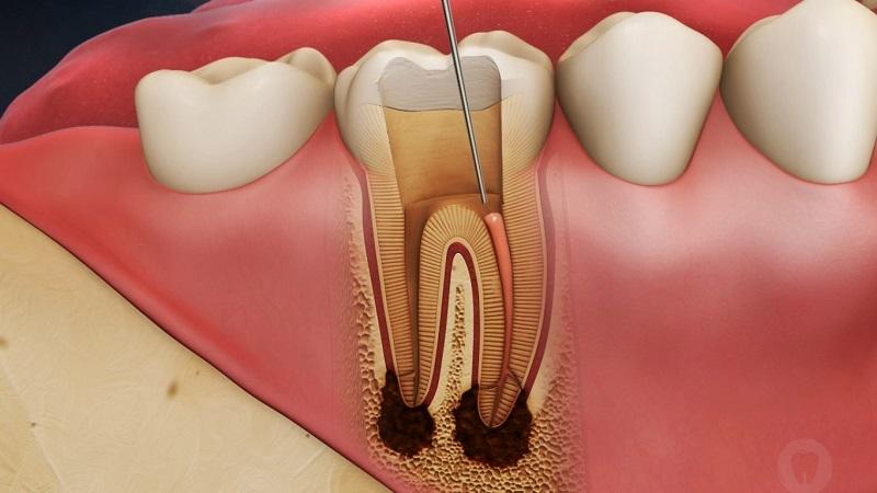 درمان و ترمیم ریشه دندان