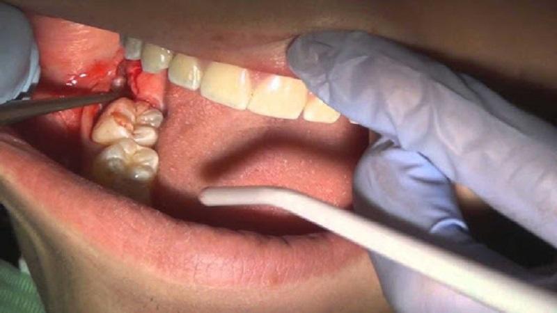 بهترین دندانپزشک اصفهان | توصیه های بعد ازکشیدن یا جراحی دندان