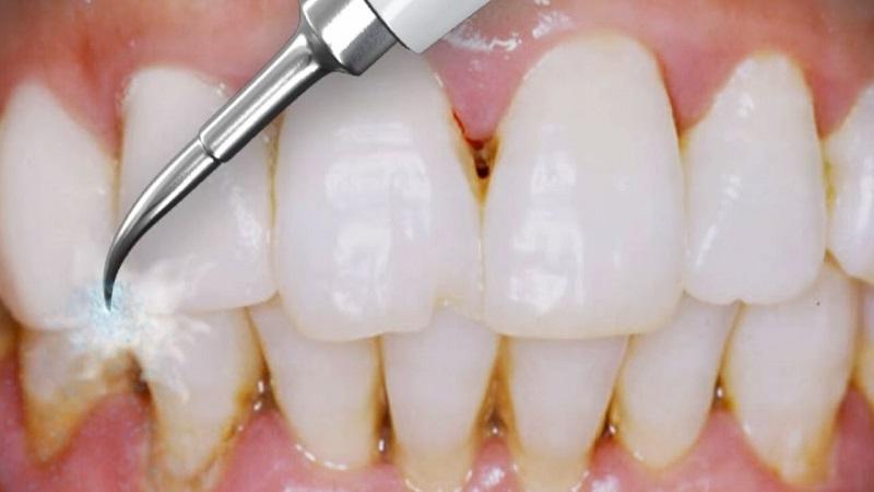بهترین دندانپزشک اصفهان   چطور جرم گیری دندان انجام می شود ؟