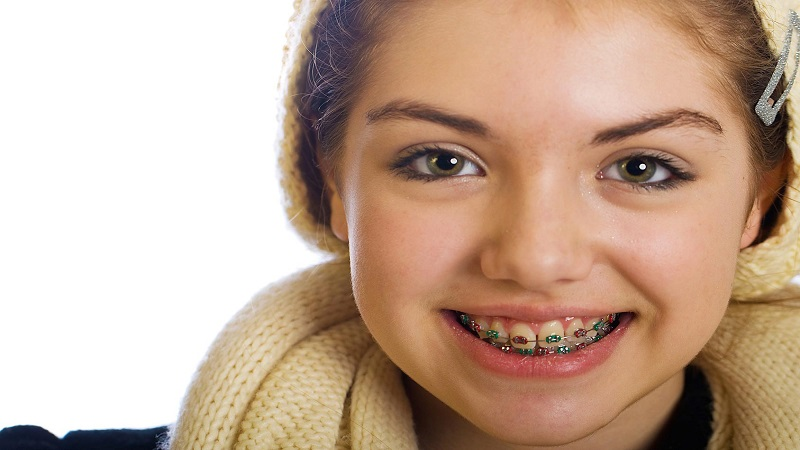 بهترین دندانپزشک اصفهان | ارتودنسی کودکان
