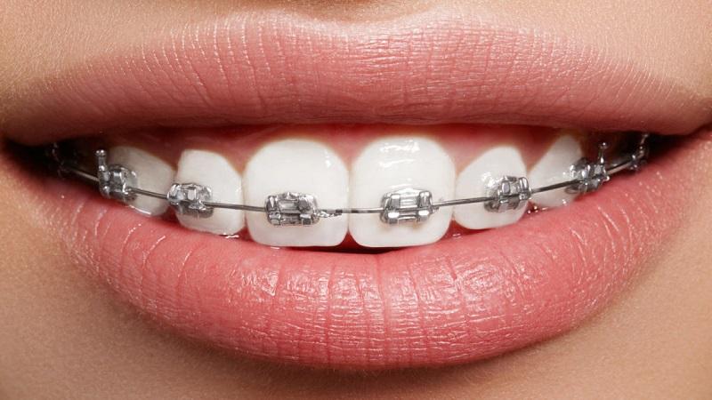 بهترین دندانپزشک اصفهان | مدت زمان ارتودنسی